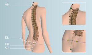 3D-Wirbelsäulenvermessung & Haltungsanalyse in meiner Praxis in Affoltern am Albis